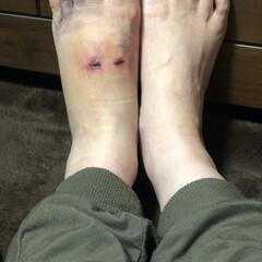 ムック/負傷の足 こんばんは、風が強く夜は寒い🥶  先日の…