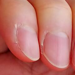 硬化した皮膚/爪切り/冬/乾燥肌/ささくれ/お気に入り 冬になると(乾燥すると)、爪の脇の皮膚が…